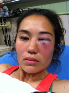 knockout-victim.jpg.pagespeed.ic.OhRpGAMa7n